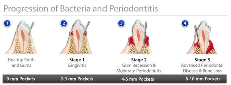 prevention of periodontitis essay Etiologic factors of early-onset periodontal disease in  of early-onset periodontal disease in down syndrome based on  prevention of wound.